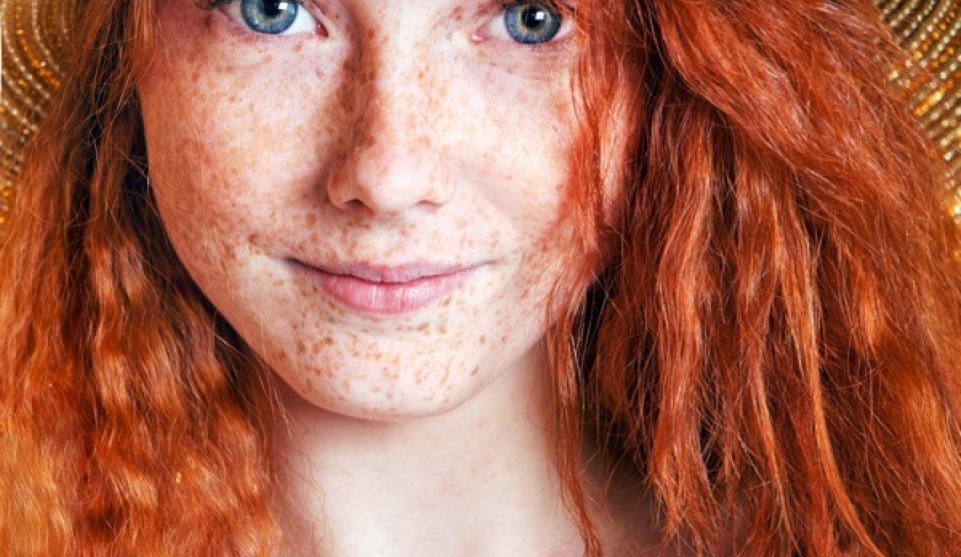 Che candeggiare la pelle di faccia da pigmentazione